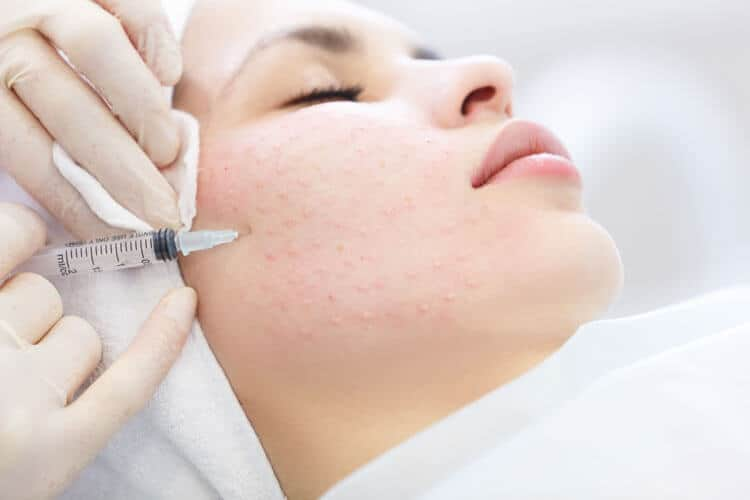 Cosmetic Treatments - Vampire Facelift (PRP)
