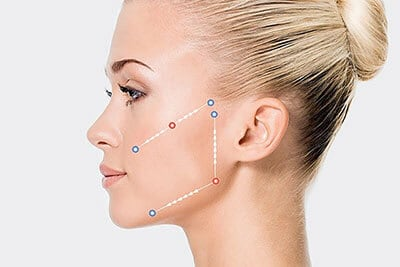 Cosmetic Treatments - One Stitch Facelift