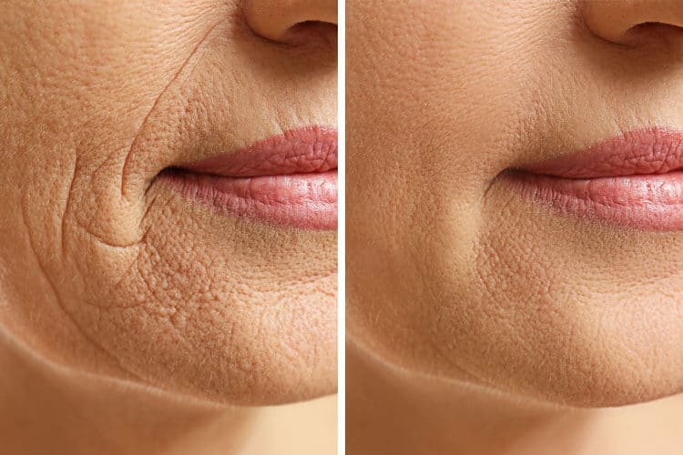 Cosmetic Treatment - Smokers Lines Before & After